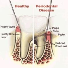 Fayetteville dental care