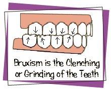 dental implant fayetteville