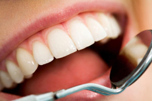 Fayetteville NC Dentist