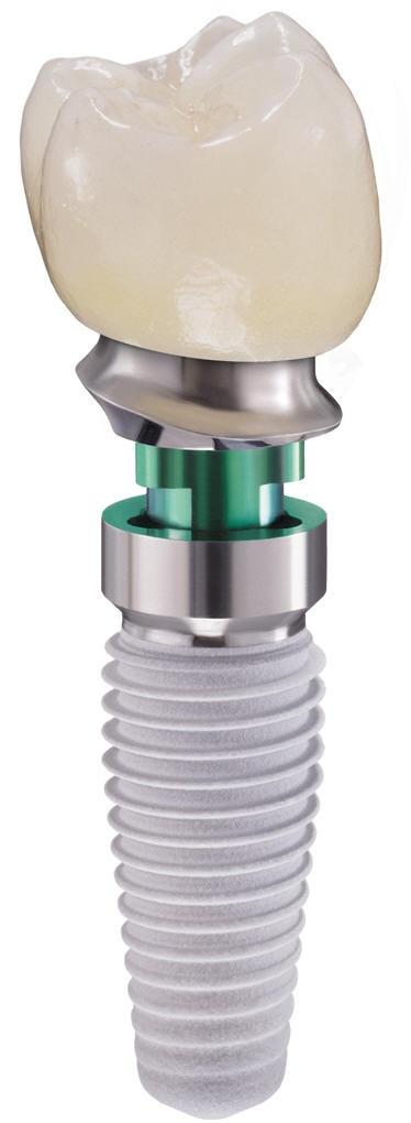 Best implant size petite — 3