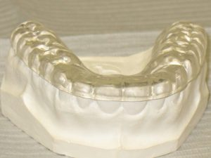 Mouthguards in Fayetteville, NC